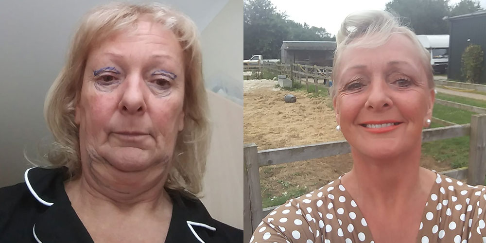 Face lift. Post op 11 months