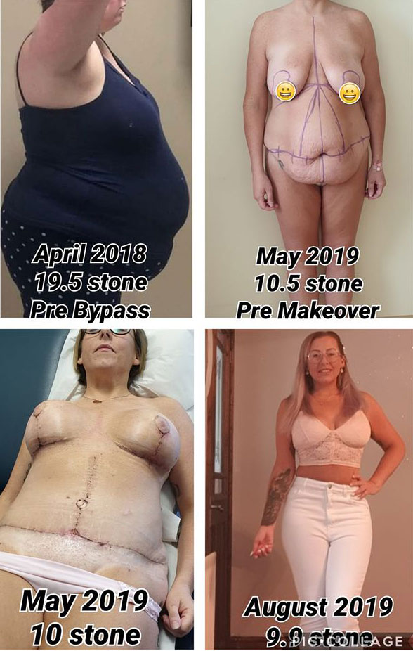 Mommy makeover 6 months post op