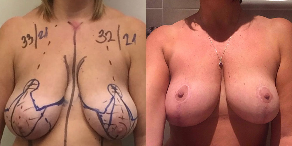 Breast reduction. Post op 9 months