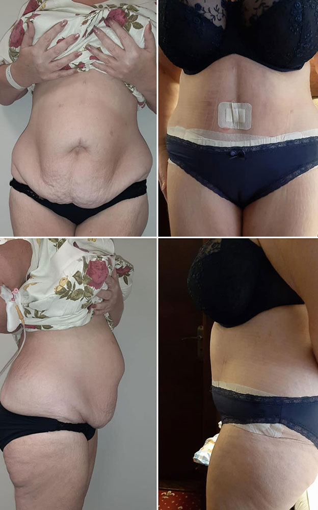 Full Tummy Tuck. Post op 3 weeks