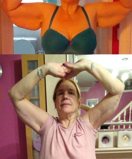Upper arm reduction. 8 months post op